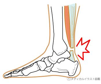 足首の歪み